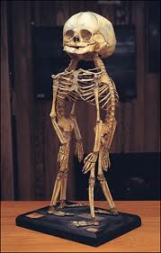 siamese skeleton skull